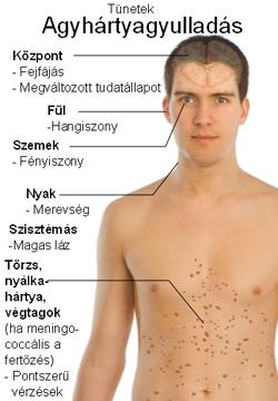 Helmint kezelés emberben - Ostorféreg-fertőzés, Hogy néz ki a helmint lárva