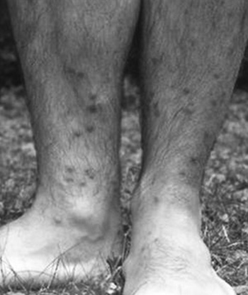 hólyag schistosomiasis