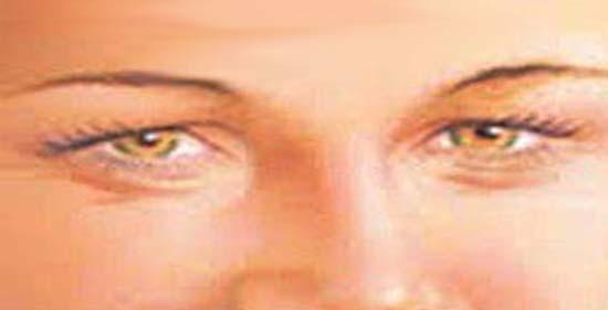 hogyan lehet megszabadulni a szem papillómájától