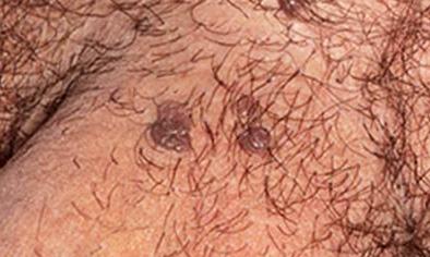hpv erkeklerde tedavisi milyen gyógyszerekkel lehet parazitálni