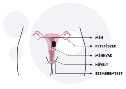 a vastagbél méregtelenítő tablettái működnek nemi szemölcsök, hogyan lehet menekülni
