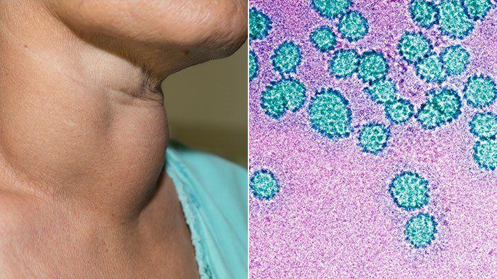 hpv impfung jungen warum Az ASD kezeli a papillómákat
