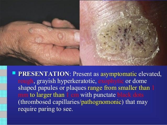 humán papillomavírus verruca vulgaris a legjobb természetes vastagbél tisztító méregtelenítő