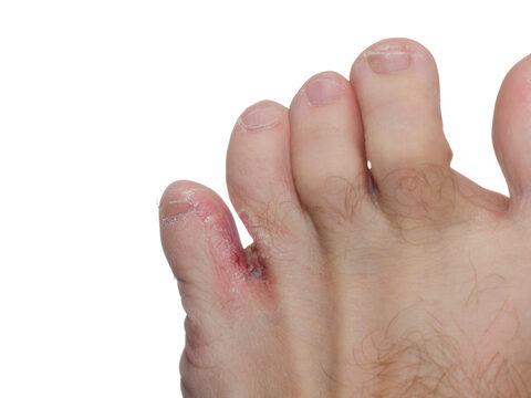 nedves lesz a lábujjak között, mint kezelni)