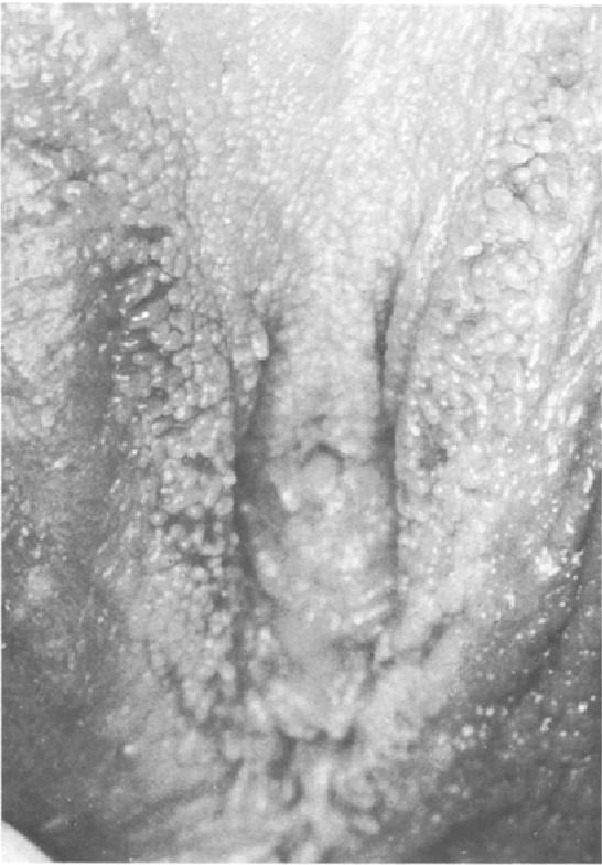 papillomatosis bőr