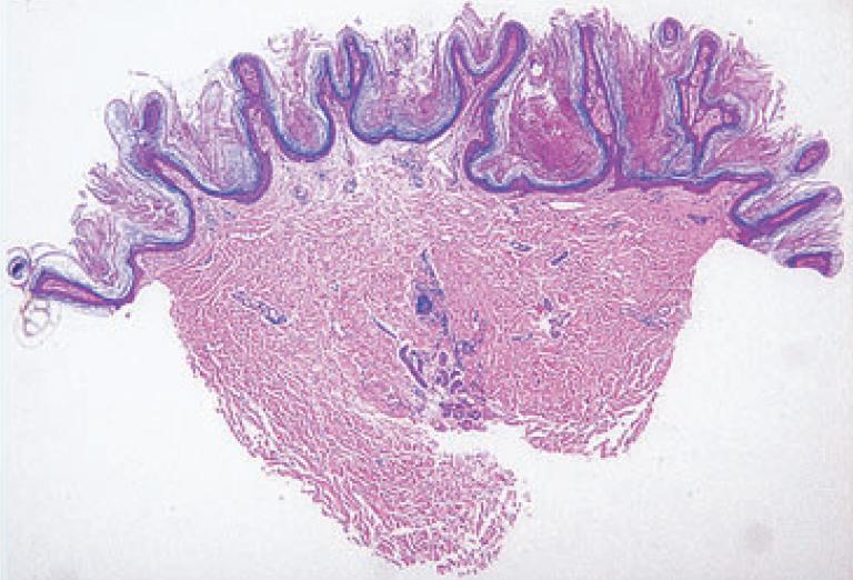 papillomatosis és acanthosis)