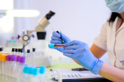 parazita betegségek laboratóriuma