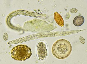 paraziták, hogyan lehet megszabadulni)