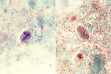 paraziták elleni férgek komplexe miért giardiaza
