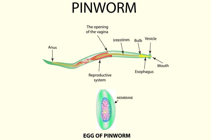 A hüvelyben lévő pinworms kezelése, Honnan kezdődik a pinworms