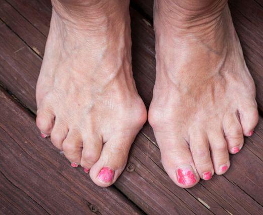 szabad fekély a lábujjak között hpv papillomavírus emberben