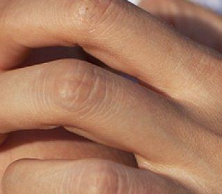 féregkezelési időszak húgyhólyag papilloma patológia