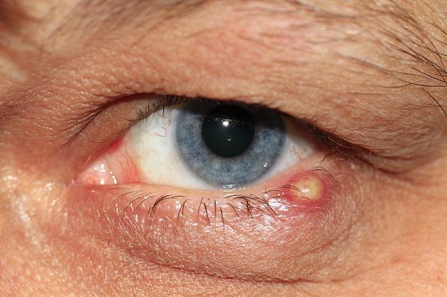 condyloma acuminata cmu helmint kezelés a szemekben